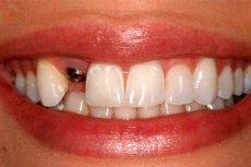 Установка імплантату зуба  переваги і недоліки  91c5461b6e1ff